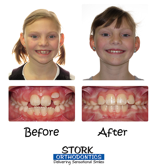 When should my child see the west des moines orthodontist stork stork orthodontics braces before and after solutioingenieria Images