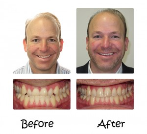 Invisalign® – The Appliance-Free Solution 5