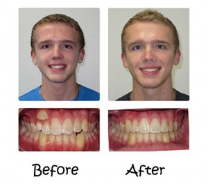 Invisalign® – The Appliance-Free Solution 6