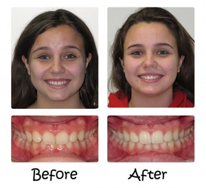 Invisalign® – The Appliance-Free Solution 8