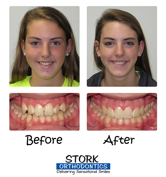 Invisalign Teen And 4