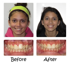 Invisalign® – The Appliance-Free Solution 10