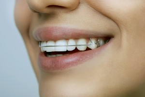 Retainers After Braces – Keeping Your Favorite Smile 2