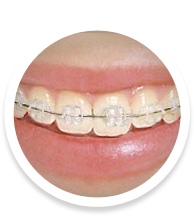 Ceramic Braces West Des Moines Iowa IA