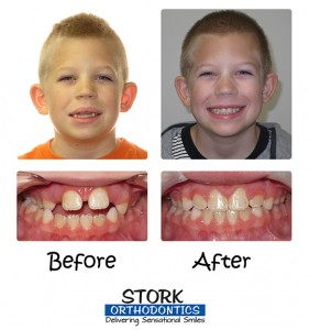 Stork Orthodontics Braces Before And After 2