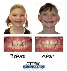 Stork Orthodontics Braces Before And After
