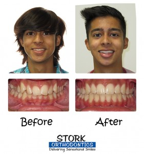 Stork Orthodontics Damon Braces Before And After 2