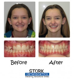 Stork Orthodontics Damon Braces Before And After 3