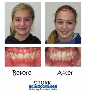 Stork Orthodontics Damon Braces Before And After