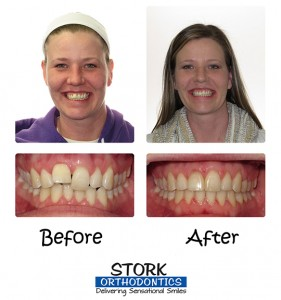 Stork Orthodontics Damon Clear Braces Before And After 2
