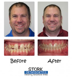 Stork Orthodontics Damon Clear Braces Before And After 3
