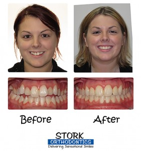 Stork Orthodontics Damon Clear Braces Before And After