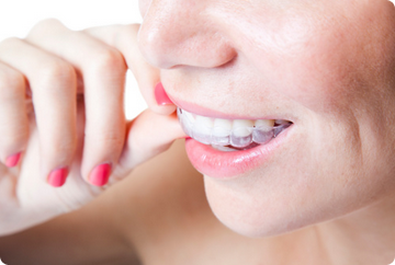 Invisalign Clear Aligners West Des Moines Iowa Ia