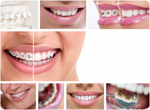 Are Braces Right For Me By Top Rate Orthodontist Near Norwalk IA
