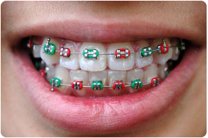 What Your Rubber Band Color Says About You By Top Rated Orthodontist In West Des Moines IA
