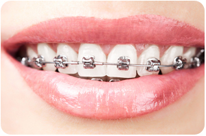 The First Few Days With Braces A Survival Guide By Top Rated Orthodontist Near Waukee IA