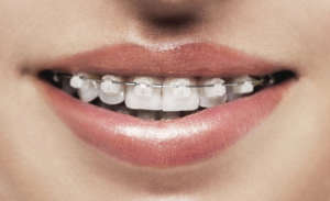 braces & invisalign in west des moines ia
